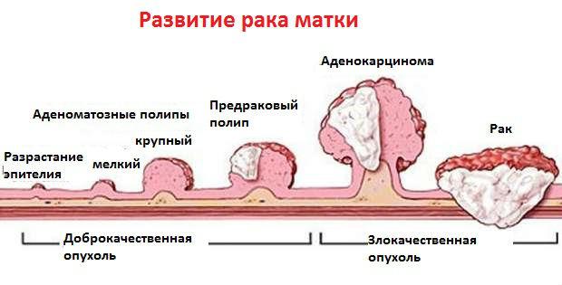 Как возникают и развиваются опухолевые процессы