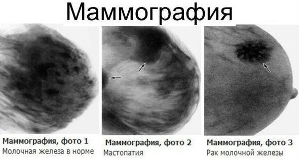 Затемнения на рентгеновском снимке женской груди