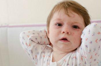 Красные пятна на теле у ребенка фото с описанием чешутся