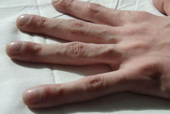 Характерное утолщение пальцев при заболевании