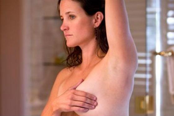 Самоосмотр позволяет обнаружить уплотнения в груди вовремя