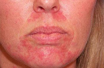 Проявление себорейного дерматита на коже лица