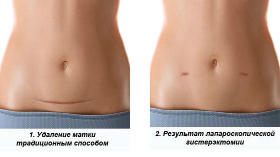 Швы, которые остаются после лапароскопии и лапаротомии