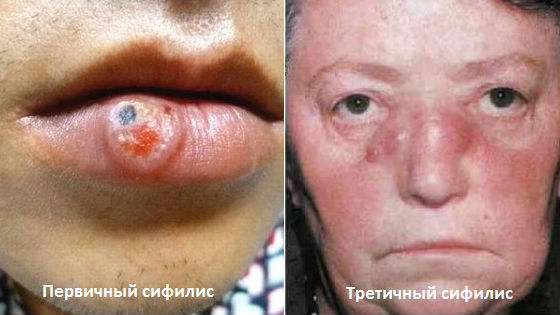 Первичный и третичный сифилис