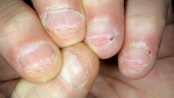 Нередко ногтевая пластина обгрызается под самый корень