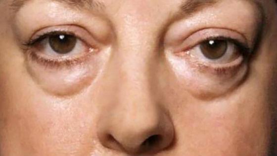 Отеки на лице часто являются признаком заболевания