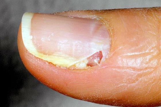 Отслоение пластины от ногтевого ложа