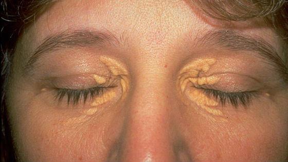 Как выглядят холестериновые бляшки на коже вокруг глаз