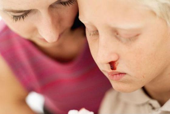 Признаки лейкемии часто путают с другими заболеваниями