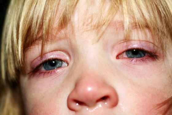 Покраснение глаз, слезоточивость, насморк как симптомы респираторных заболеваний