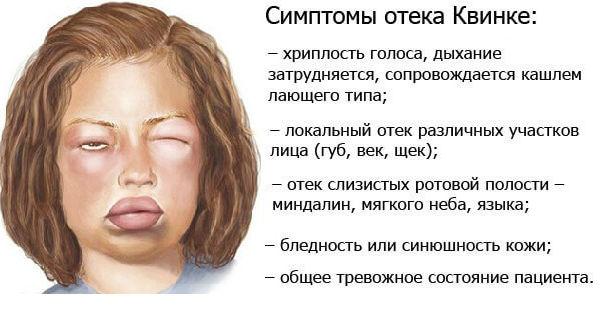 Отек Квинке и его симптомы