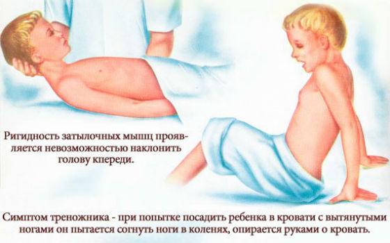 Менингиальный синдром и поза треножника
