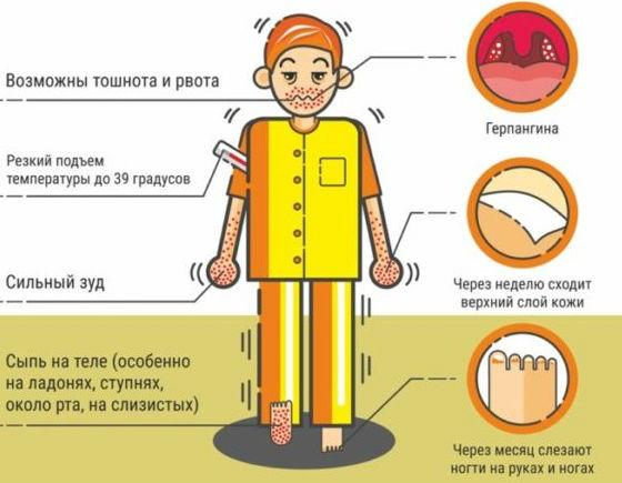 Основные симптомы энтеровирусных заболеваний