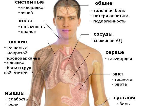 Общие признаки пневмонии