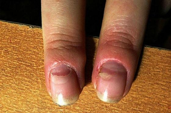 Отслоение ногтевой пластины при энтеровирусной инфекции