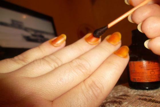 Смазывание ногтевой пластины йодным раствором