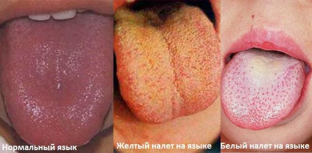 Желтоватая и белая окраска языковой поверхности