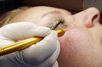 Сосудистые звездочки на лице: причины и лечение