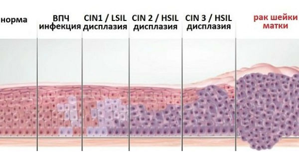 Изменения в шейке от дисплазии до рака