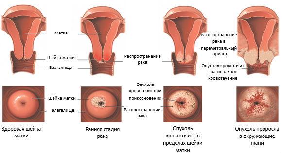 Развитие опухолевого процесса в шеечном отделе матки