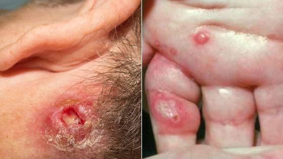Поражение кожи стафилококковой инфекцией