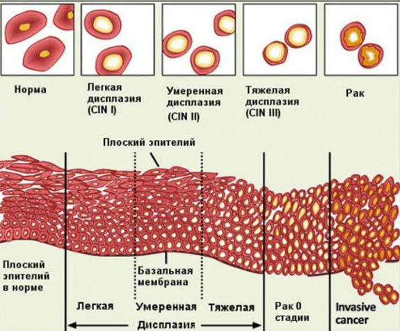 Формы и степени дисплазийного изменения шейки матки