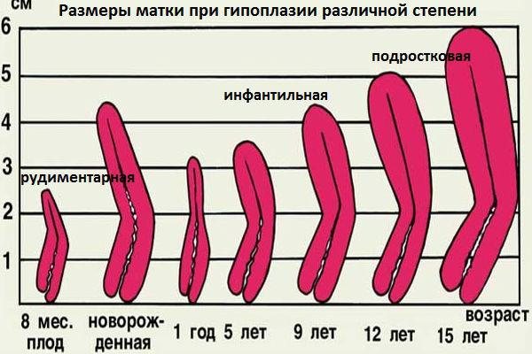 Размеры и степени недоразвития органа соответственно возрасту
