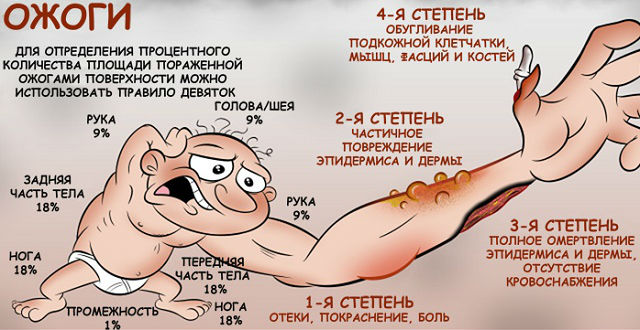 Степени и площадь ожоговой поверхности кожи