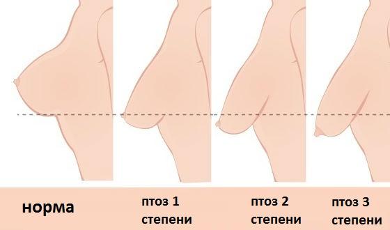 Степени опущения груди