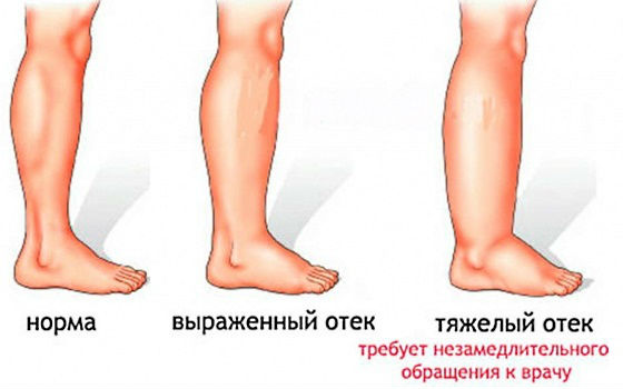 Степени выраженности отекания стоп и голеней