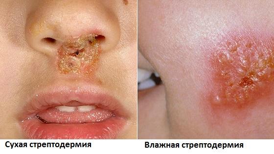 Сухая и мокнущая формы поражения кожи стрептококком