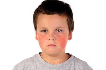 Свинка болезнь у детей