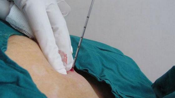 Взятие проб тканей груди толстой иглой