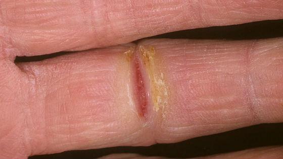 Потрескавшаяся рана на ладони