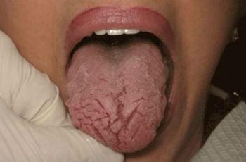 Трещины на языке причины и лечение