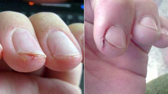 Трескается кожа на у ногтей