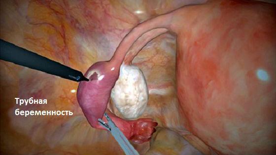 Развитие зародыша в маточной трубе