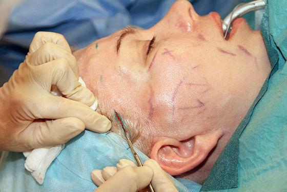 Круговая подтяжка как метод устранения обвисания кожи