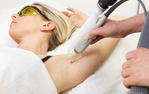 Удаление волос лазером со встроенной головкой охлаждения