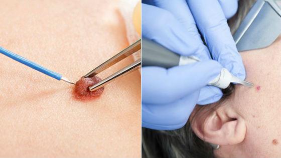 Хирургическое удаление невусов