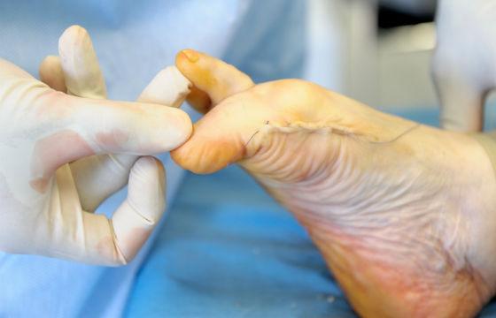 Удаление косточки  стопе