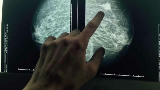 Маммография, снимок с уплотнением в груди