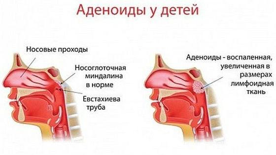 Увеличение глоточной лимфоидной ткани, аденоидит