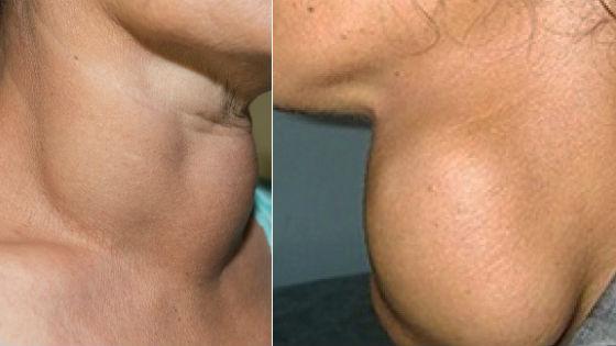 Внешние проявления увеличения щитовидки