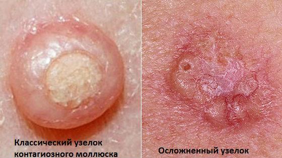 Классическая и осложненная сыпь при вирусном поражении кожи