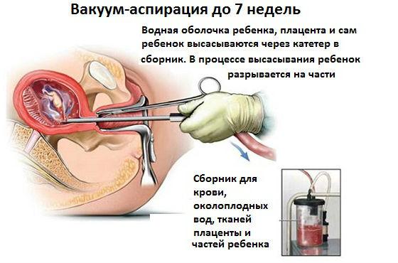 Вакуумная аспирация зародыша до 7 недель