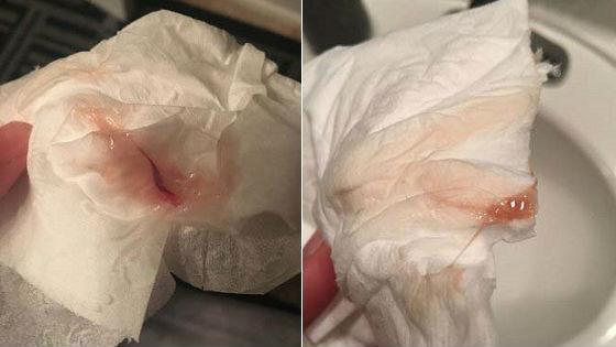 Розовые выделения после месячных без запаха 2