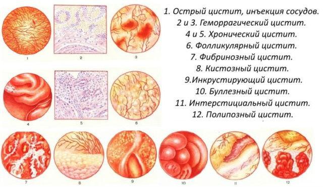 Разновидности воспаления мочевого пузыря