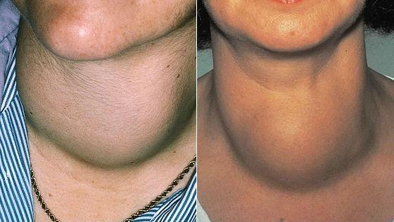 Внешние признаки узлового увеличения щитовидки