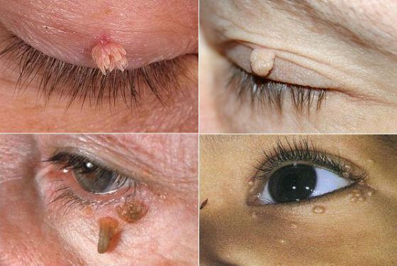 Папилломатозные образования в области глаз